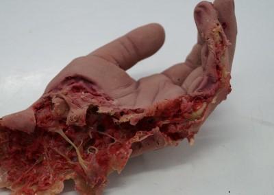 Abgerissene Hand mit modellierten Knochen und Gelenk