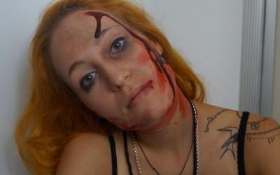 Eine Dame mit Platzwunden, Prellungen und Schwellungen nach häuslicher Gewalt