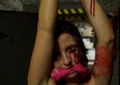Schnitt durch ein Auge bei einem Opfer eines Gewaltverbrechens