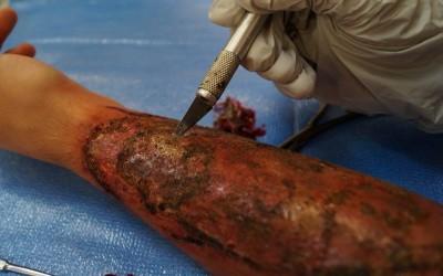 Operation einer Verbrennung