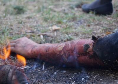 Verbrannter Arm an einer Feuerstelle