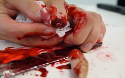 Abgeschnittener Finger