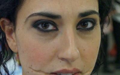 Künstliche Narben an den Mundwinkeln