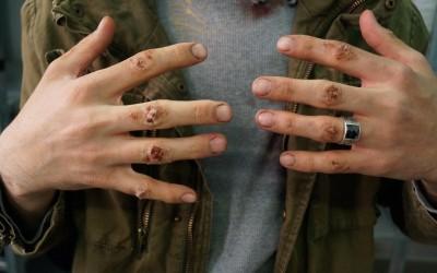 """Verschmutzte, trockene und aufgerissene Hände; """"Escaping Damascus"""""""