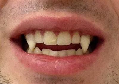 Vampirzähne, perfekt angepasst an jedem Gebiss möglich
