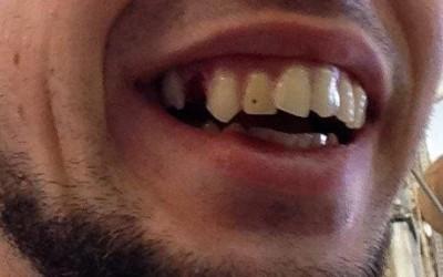 Künstliches Gebiss mit ungepflegt, schiefen Zähnen und einer Zahnlücke